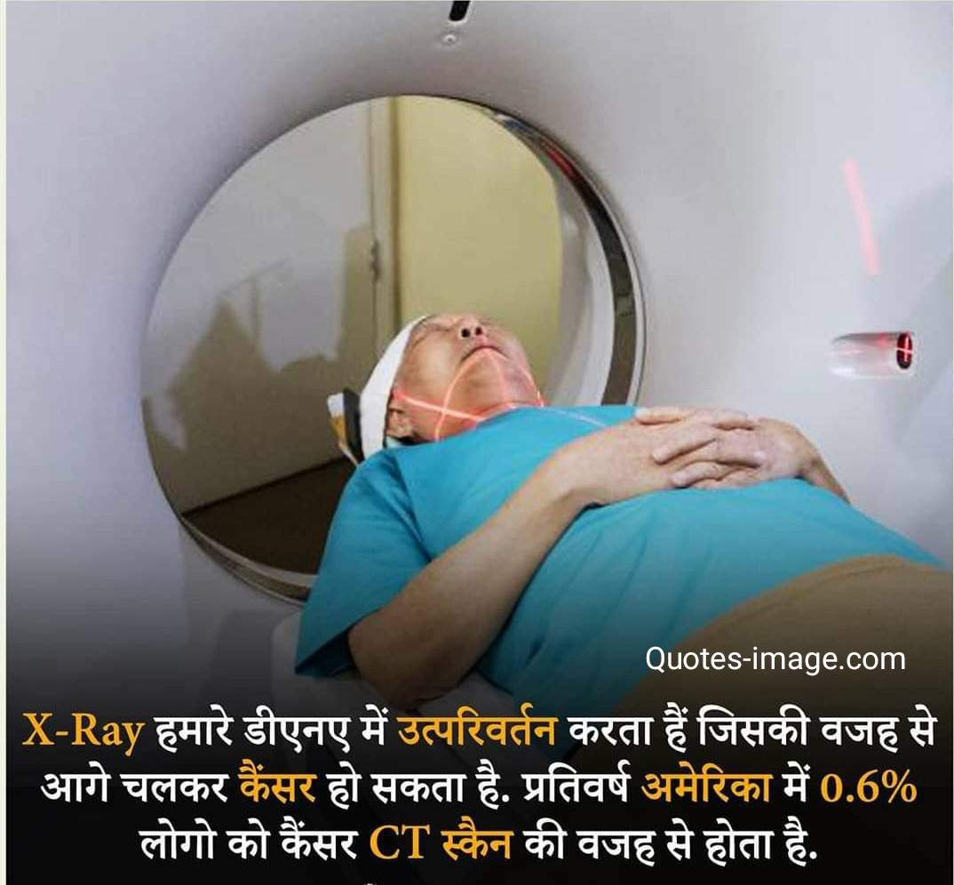 Facts About X Ray  | Facts About CT Scan |